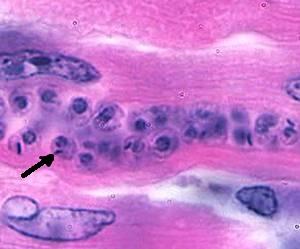 T. cruzi amastigotes in heart tissue.