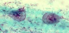 a dermatitist paraziták okozzák milyen népi gyógyszer a férgek számára