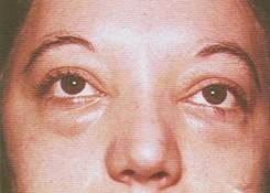 Assured, facial edema burning eyes